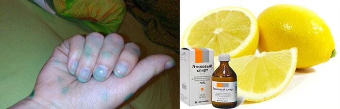 Рука в зеленке, лимон и спирт