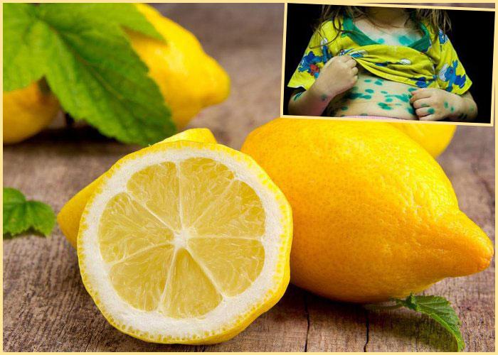 Лимоны и ребенок в зеленке