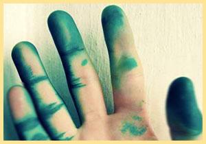 Зеленка на руке