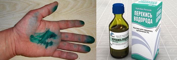 Рука в зеленке и перекись водорода