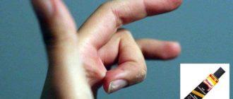 Если прилипла рука