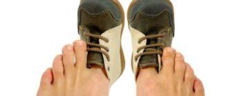 Если обувь маленькая