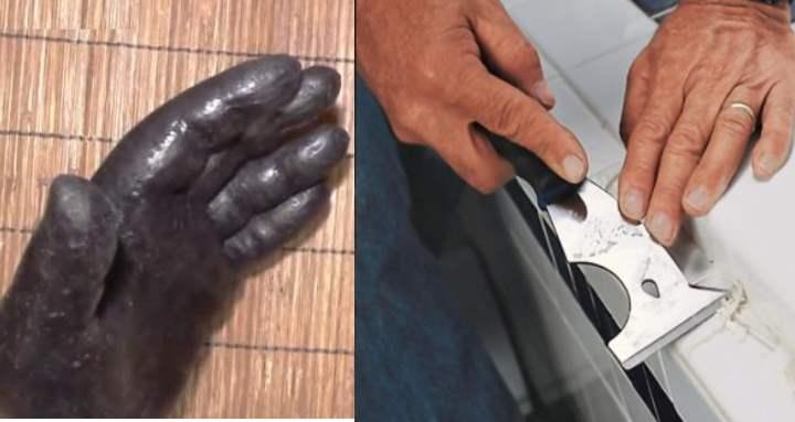 Чтоб избежать неприятной ситуации – ходить несколько недель с герметиком на коже