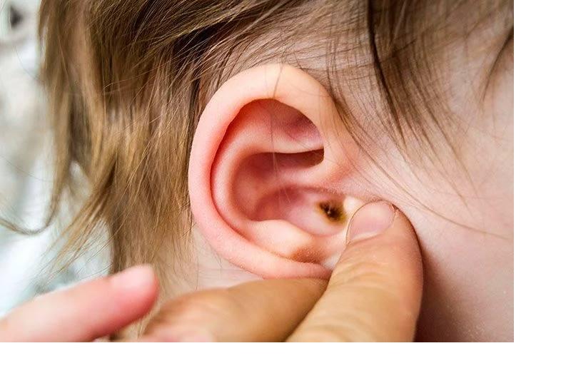 Нужно ли чистить детям уши и как это делать правильно
